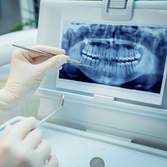 Clinicas dentales Alonso Stuyck en Valencia
