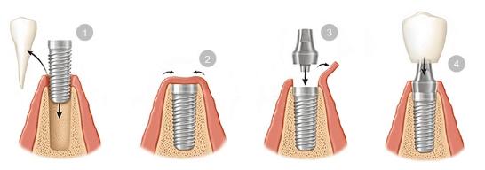 Piezas dentales implantadas
